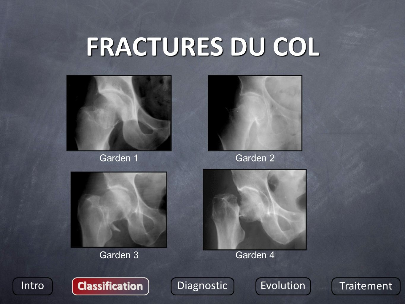 FRACTURES DU COL Intro Classification Diagnostic Evolution Traitement