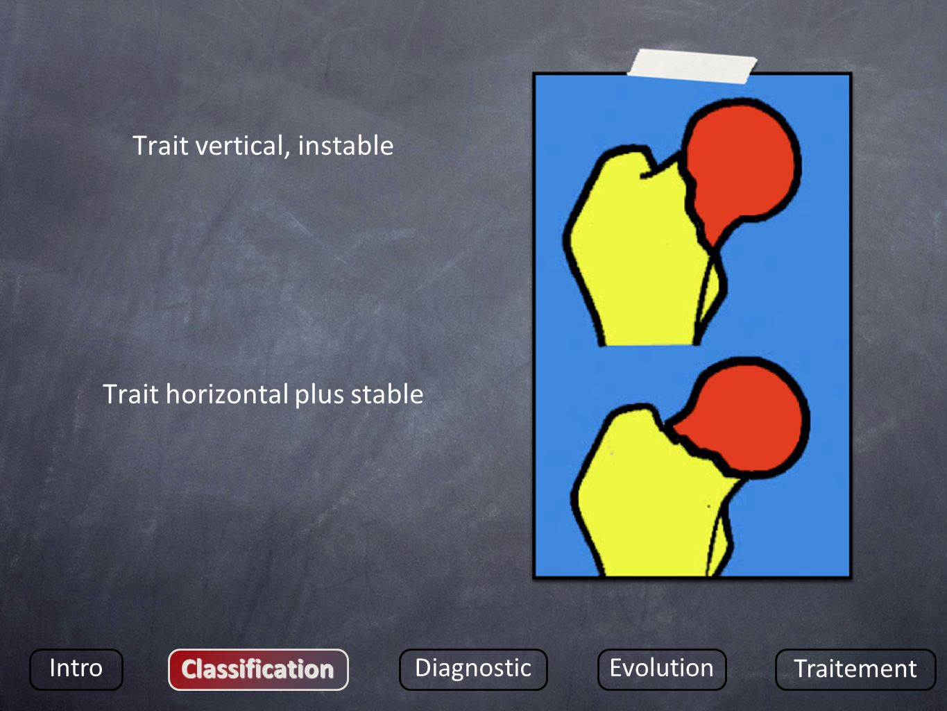 Trait vertical, instable