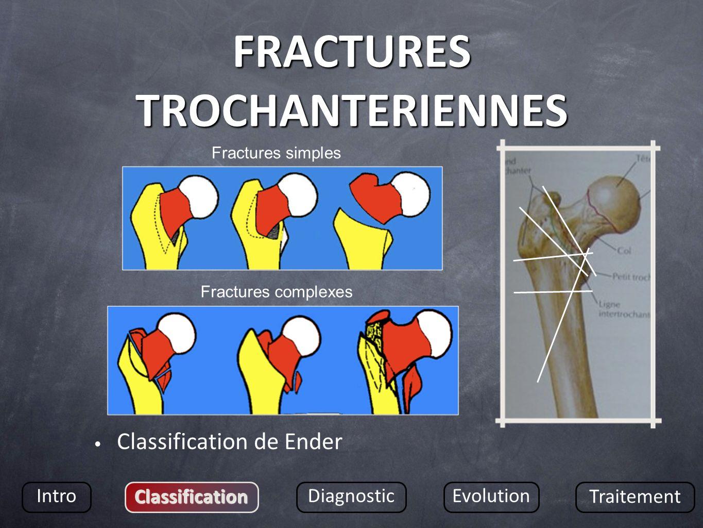 FRACTURES TROCHANTERIENNES