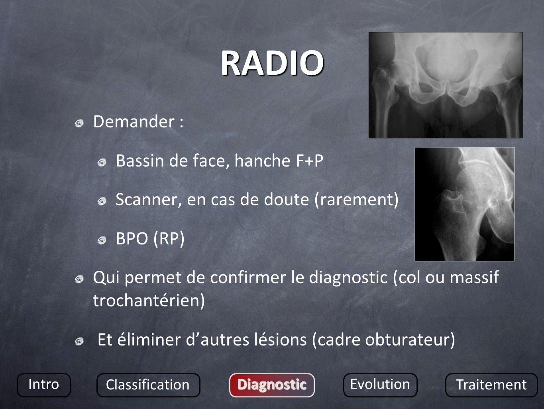 RADIO Demander : Bassin de face, hanche F+P