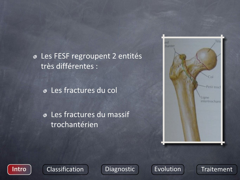 Les FESF regroupent 2 entités très différentes : Les fractures du col