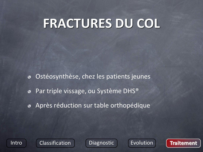 FRACTURES DU COL Ostéosynthèse, chez les patients jeunes
