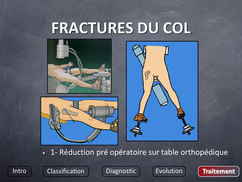 FRACTURES DU COL 1- Réduction pré opératoire sur table orthopédique