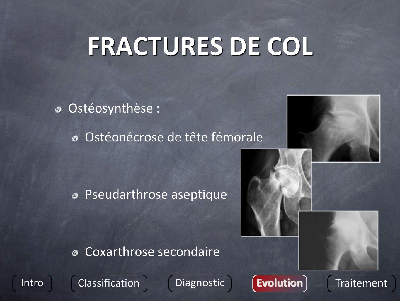 FRACTURES DE COL Ostéosynthèse : Ostéonécrose de tête fémorale