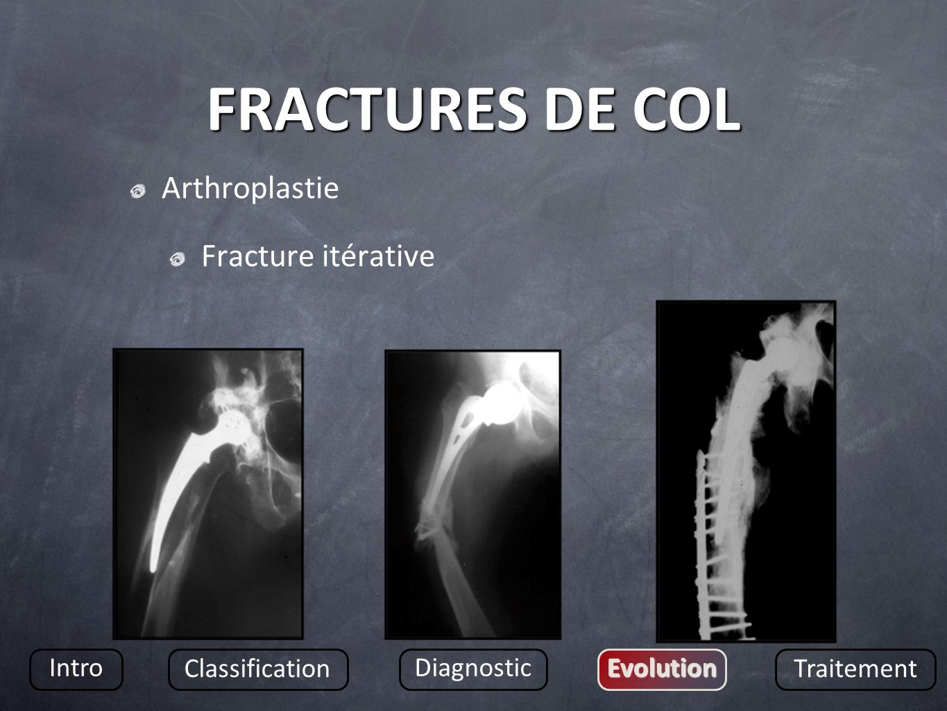 FRACTURES DE COL Arthroplastie Fracture itérative Intro Classification