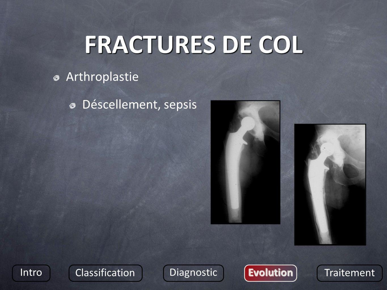 FRACTURES DE COL Arthroplastie Déscellement, sepsis Intro
