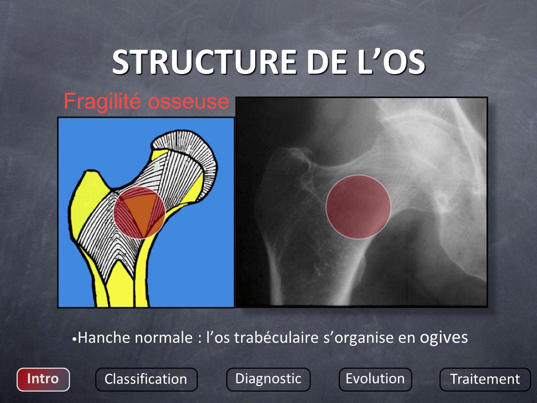 STRUCTURE DE L'OS Fragilité osseuse