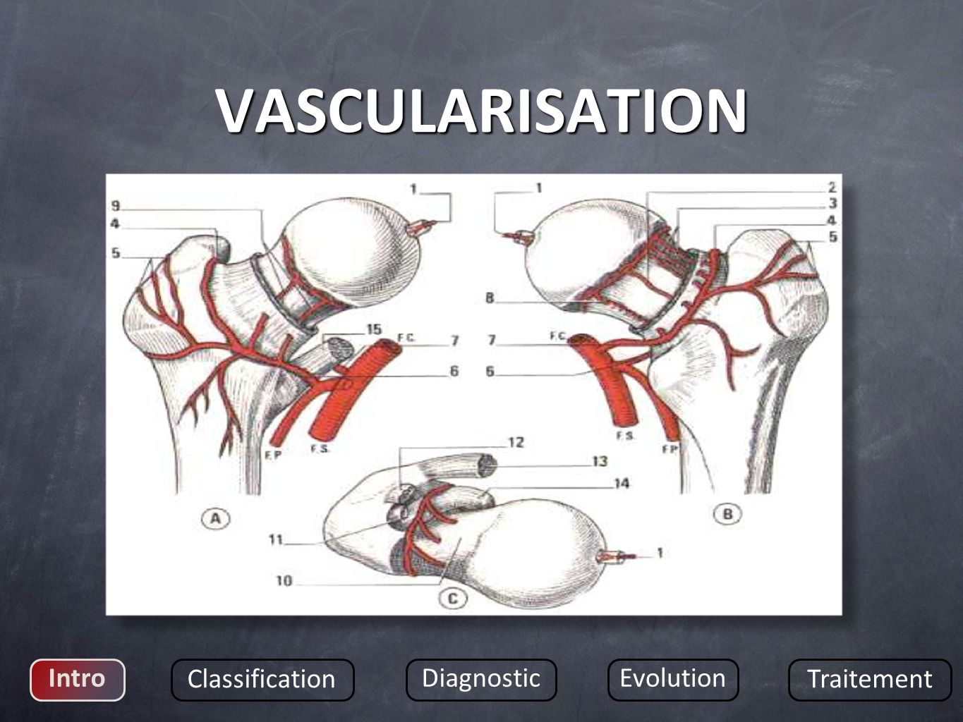 VASCULARISATION Intro Classification Diagnostic Evolution Traitement