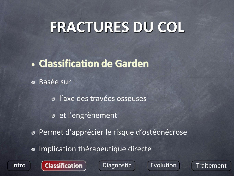 FRACTURES DU COL Classification de Garden Basée sur :