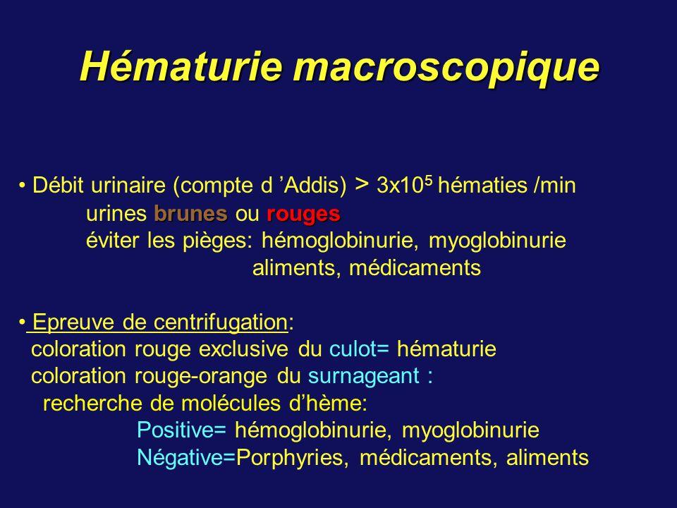 Hématurie macroscopique