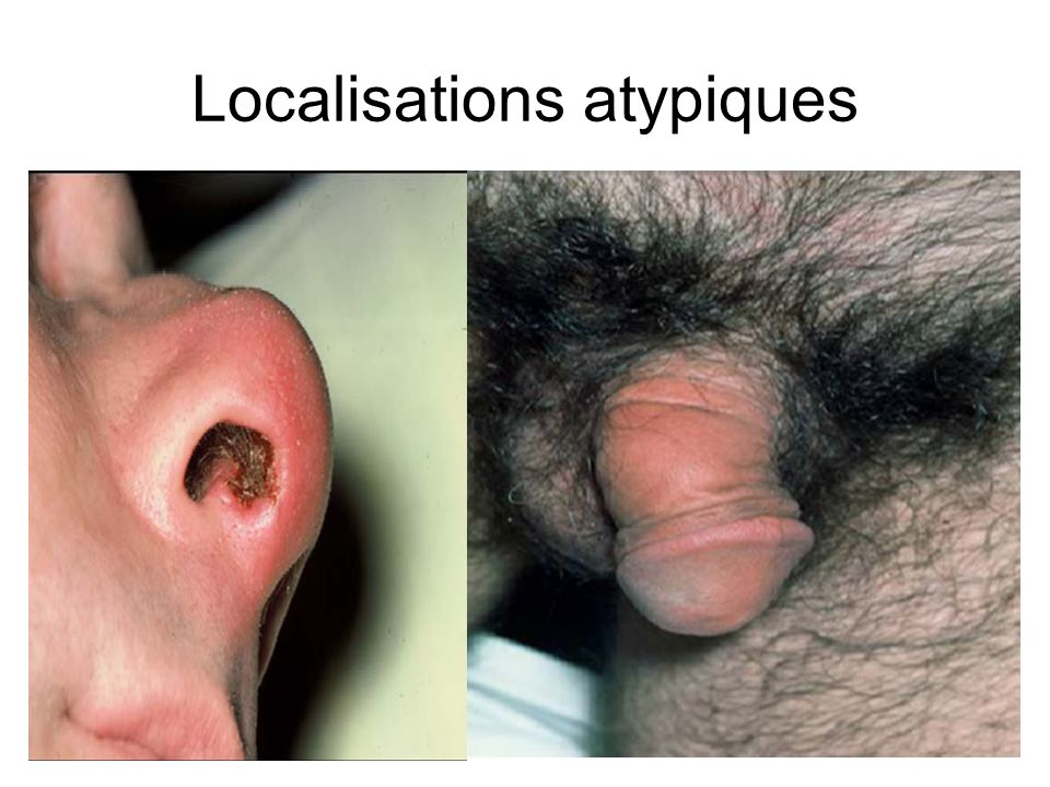 Localisations atypiques