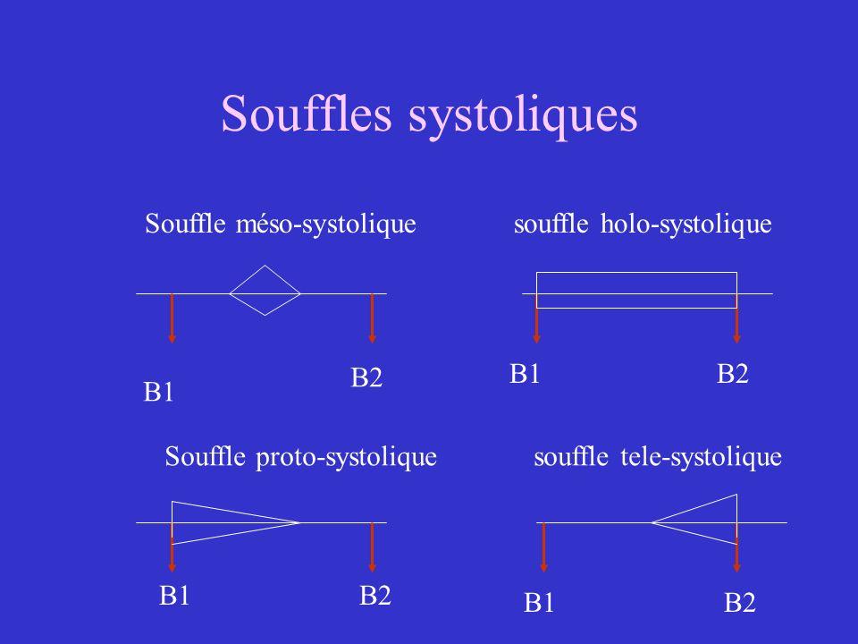 Souffles systoliques Souffle méso-systolique souffle holo-systolique