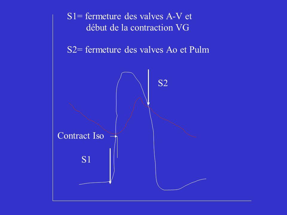 S1= fermeture des valves A-V et