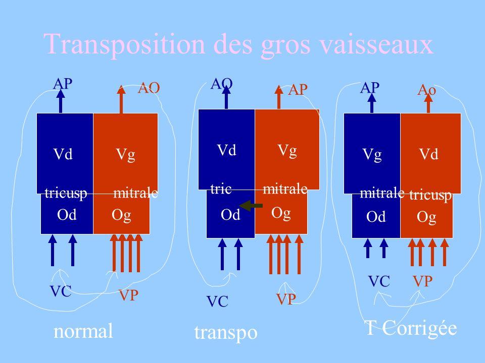 Transposition des gros vaisseaux