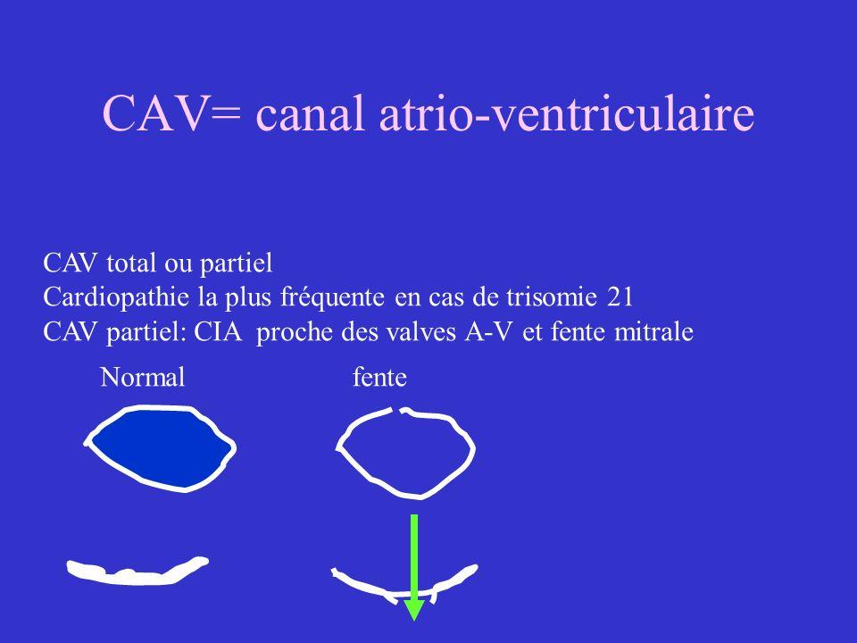 CAV= canal atrio-ventriculaire