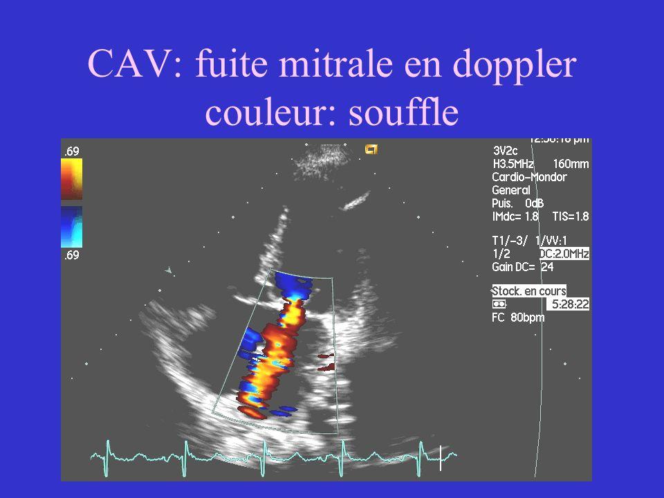CAV: fuite mitrale en doppler couleur: souffle