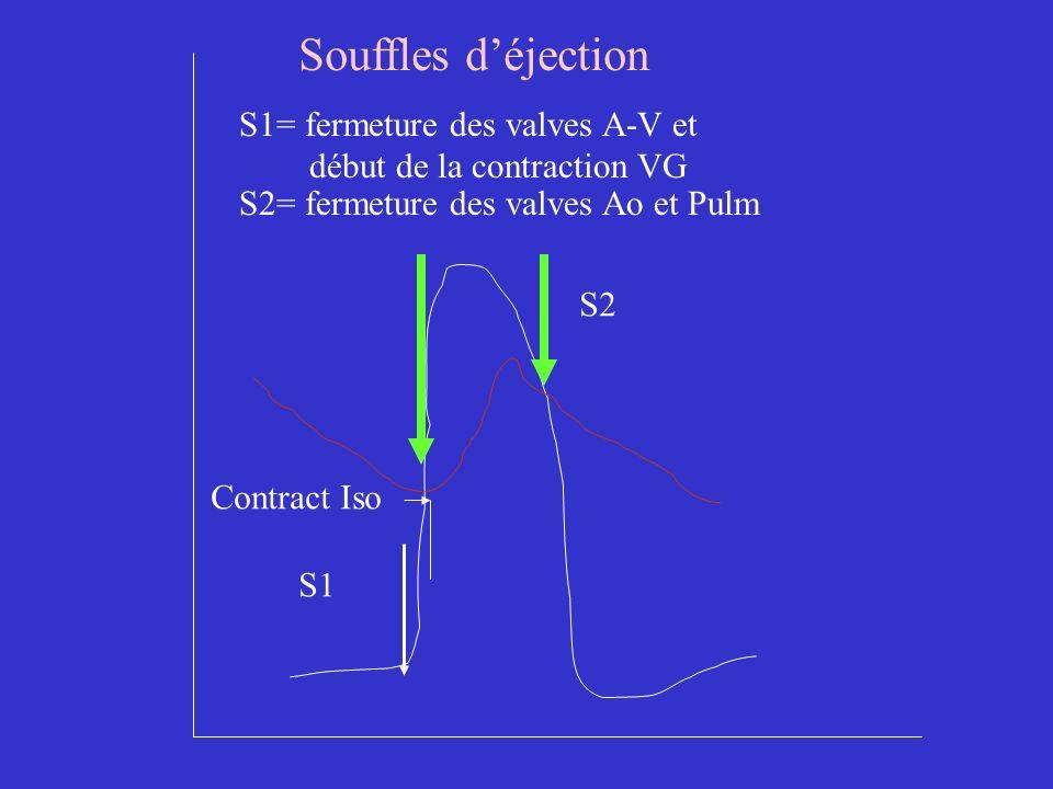 Souffles d'éjection S1= fermeture des valves A-V et