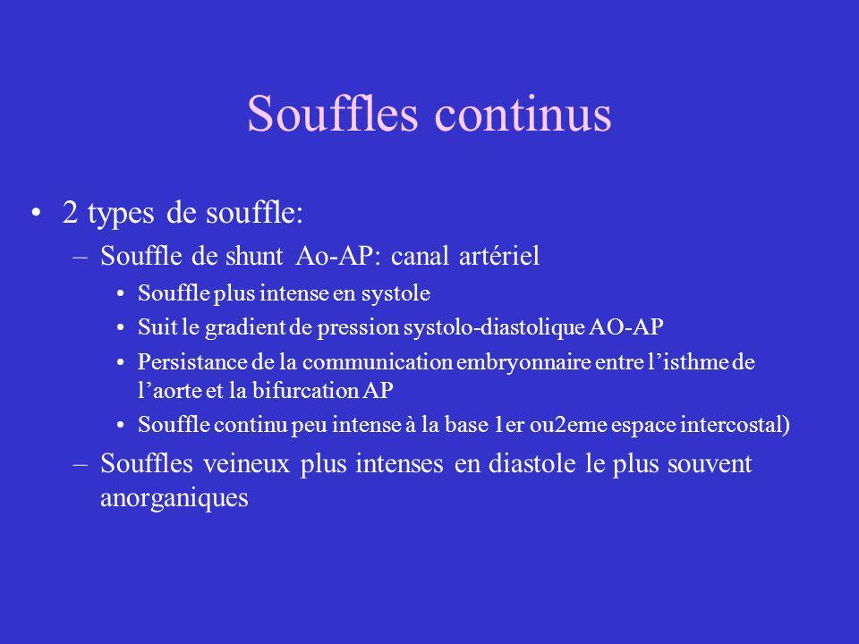 Souffles continus 2 types de souffle: