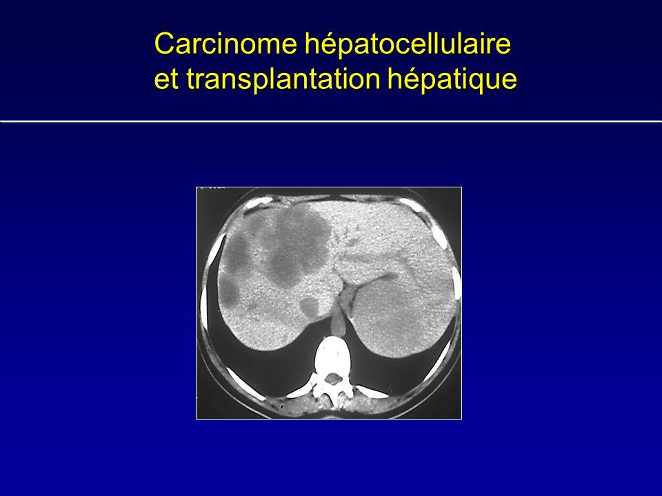 Carcinome hépatocellulaire et transplantation hépatique