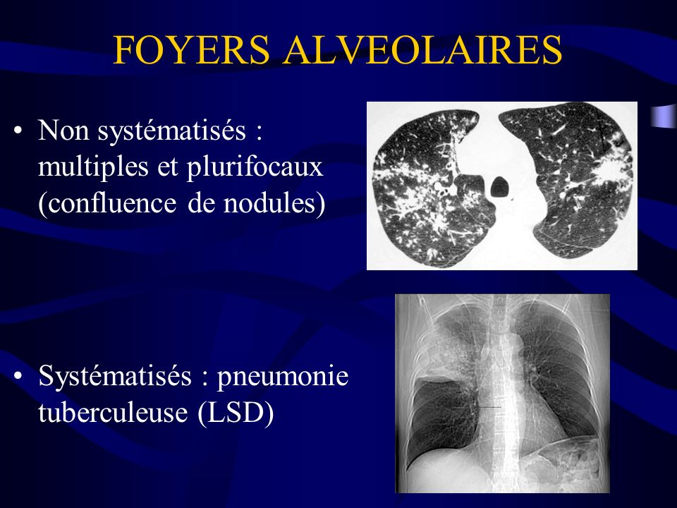 FOYERS ALVEOLAIRESNon systématisés : multiples et plurifocaux (confluence de nodules) Systématisés : pneumonie tuberculeuse (LSD)
