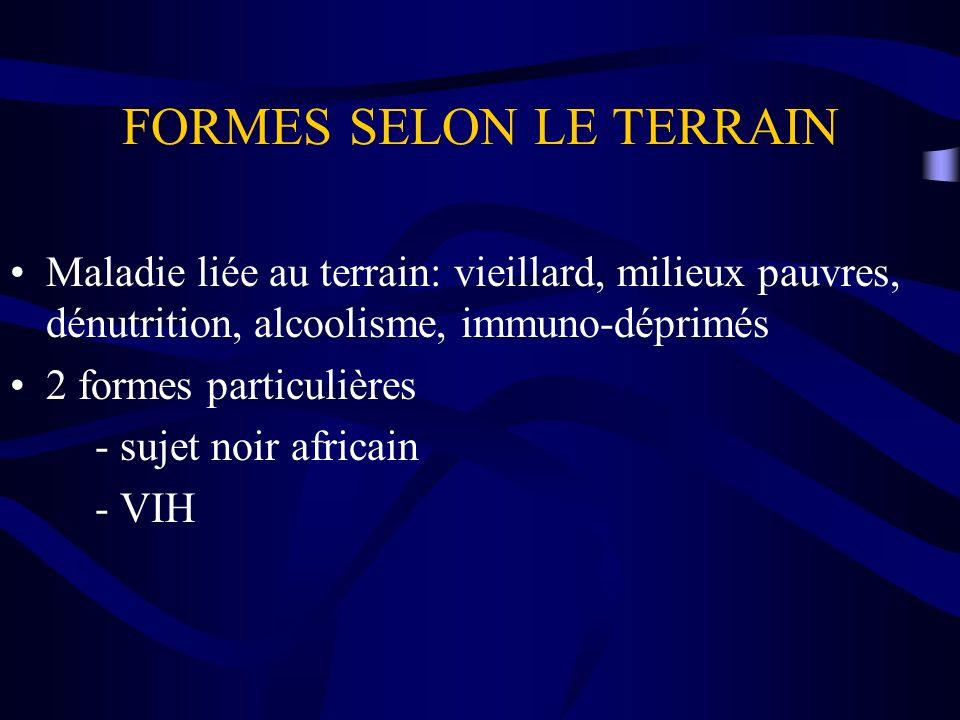 FORMES SELON LE TERRAIN