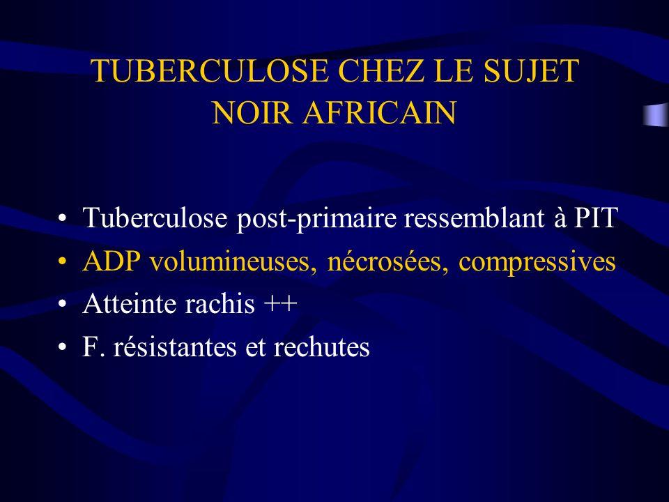 TUBERCULOSE CHEZ LE SUJET NOIR AFRICAIN