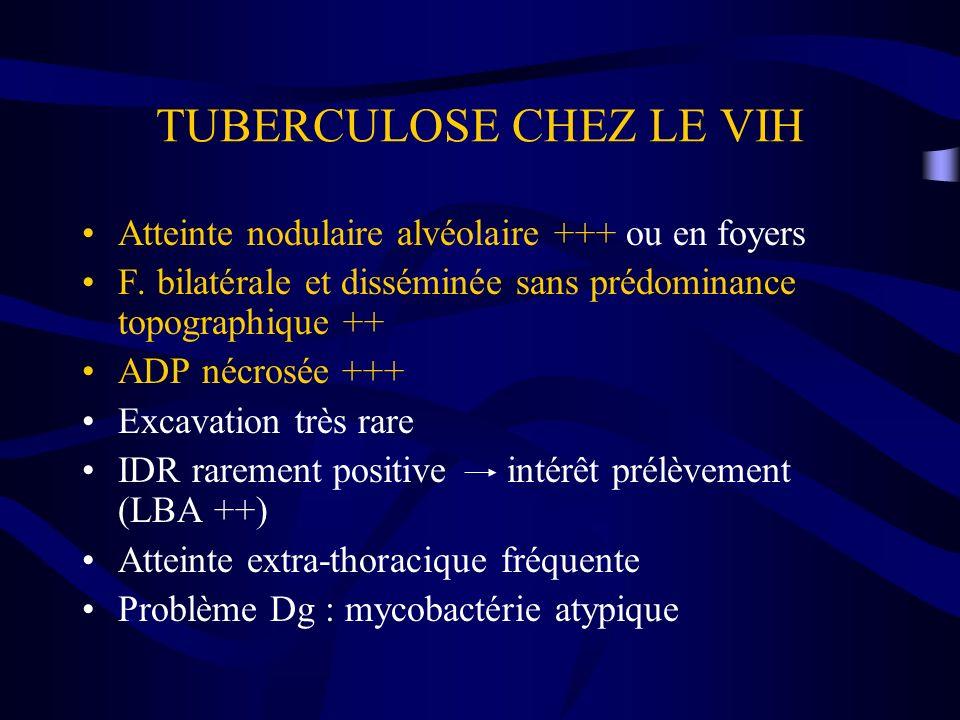 TUBERCULOSE CHEZ LE VIH