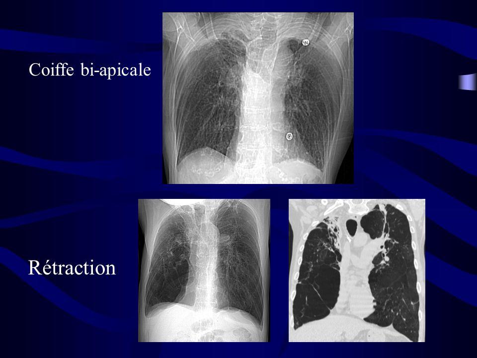 Coiffe bi-apicale Rétraction