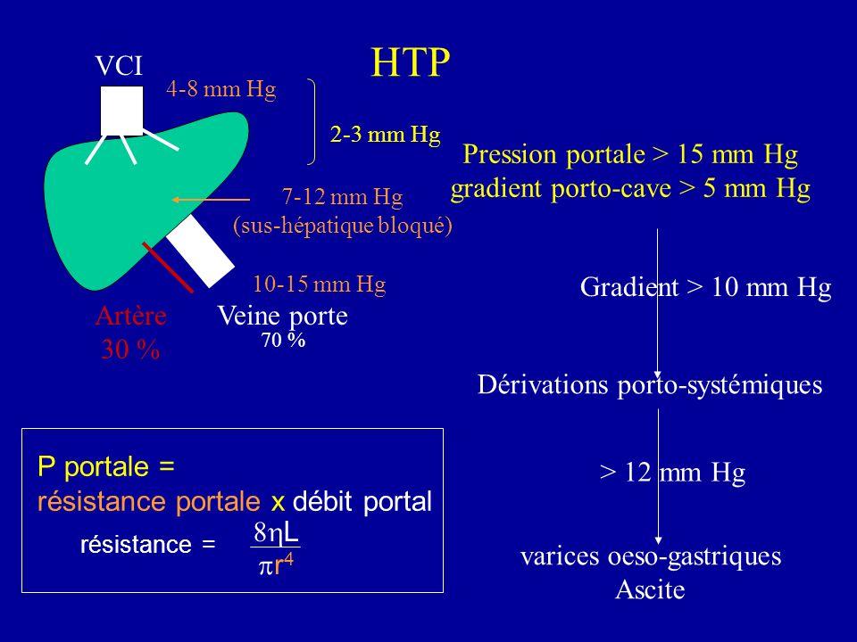 HTP VCI Pression portale > 15 mm Hg