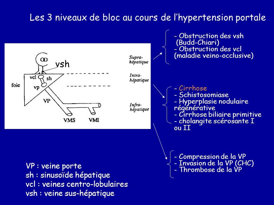Les 3 niveaux de bloc au cours de l'hypertension portale