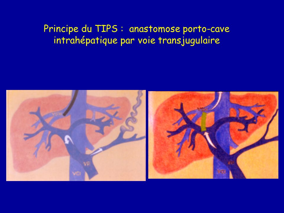 Principe du TIPS : anastomose porto-cave intrahépatique par voie transjugulaire
