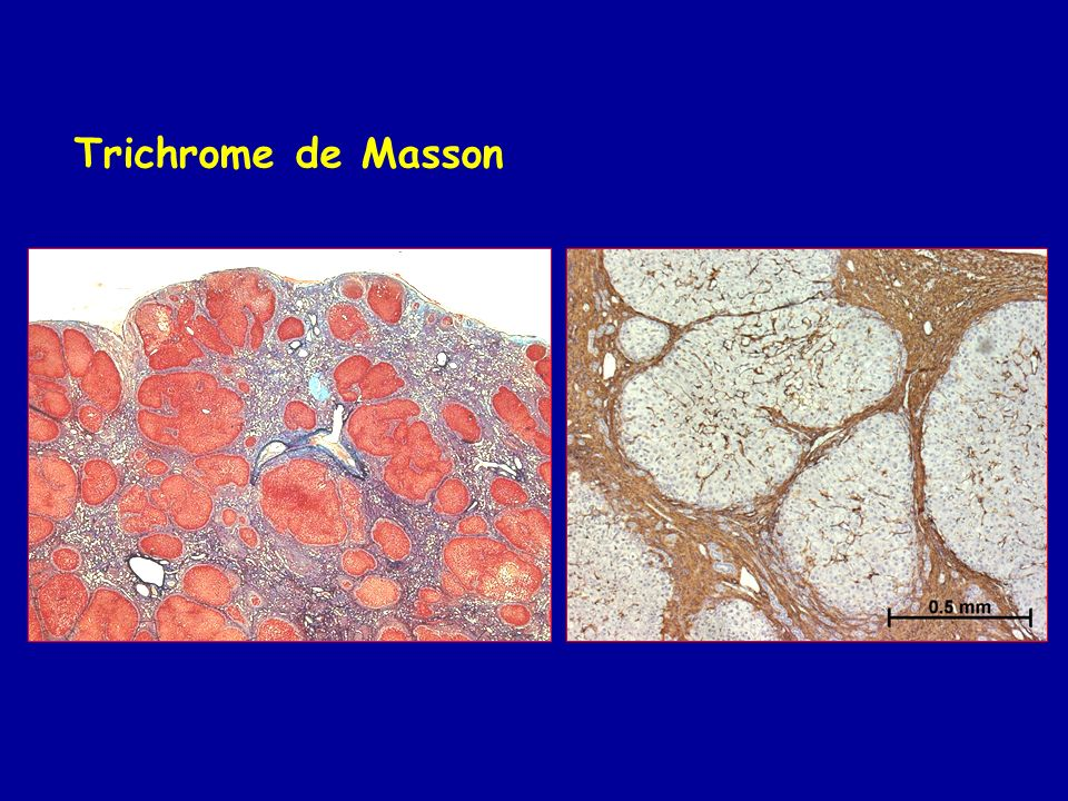 Trichrome de Masson