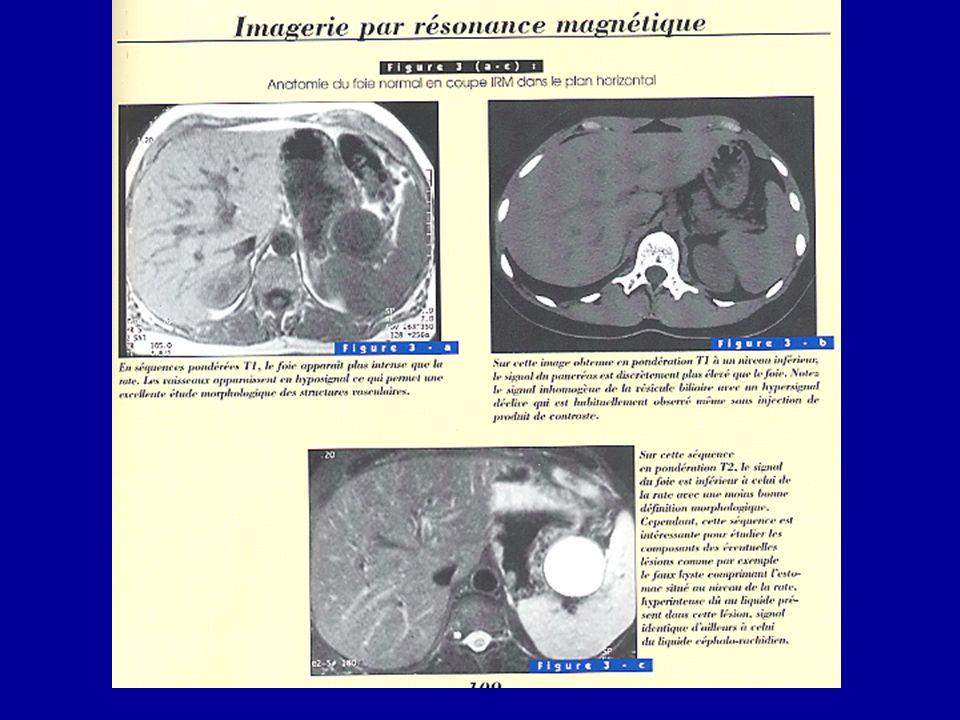 T1 : foie + hypo que la rate : vaisseaux hypo : bonne étude