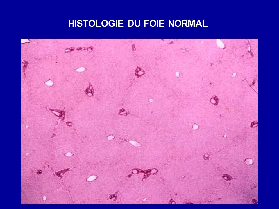 HISTOLOGIE DU FOIE NORMAL