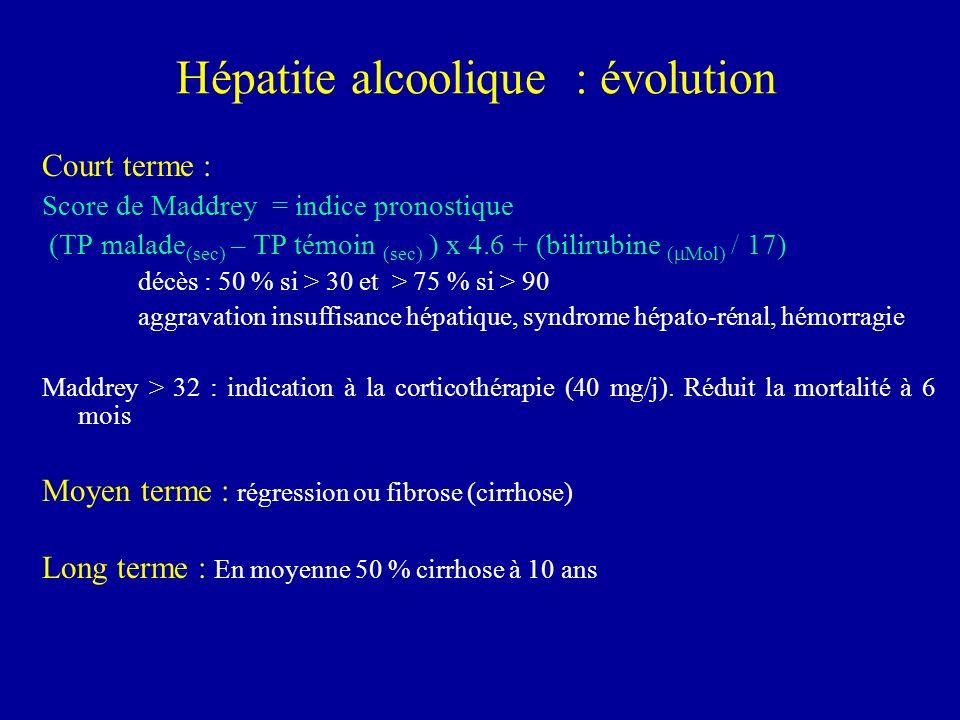 Hépatite alcoolique : évolution