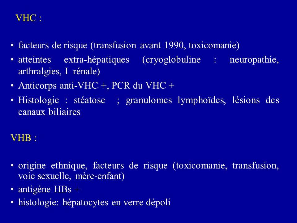 VHC : facteurs de risque (transfusion avant 1990, toxicomanie) atteintes extra-hépatiques (cryoglobuline : neuropathie, arthralgies, I rénale)