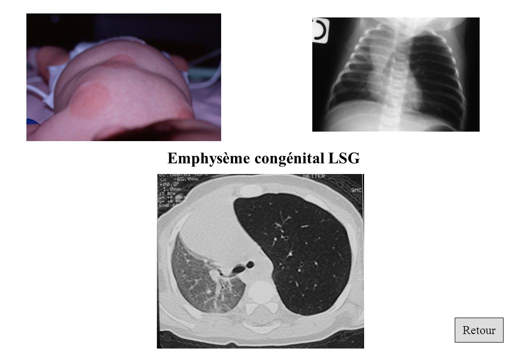 Emphysème congénital LSG
