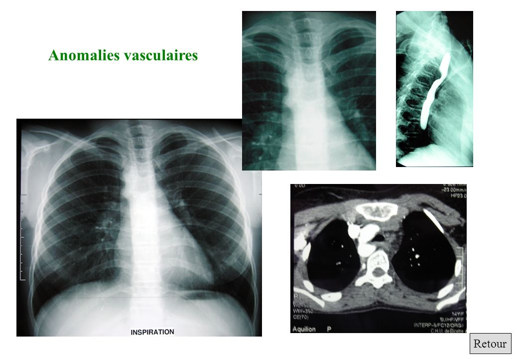 Anomalies vasculaires