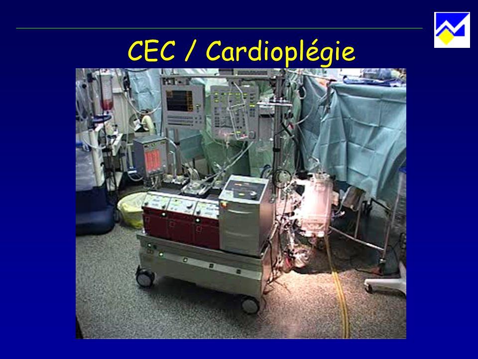 CEC / Cardioplégie