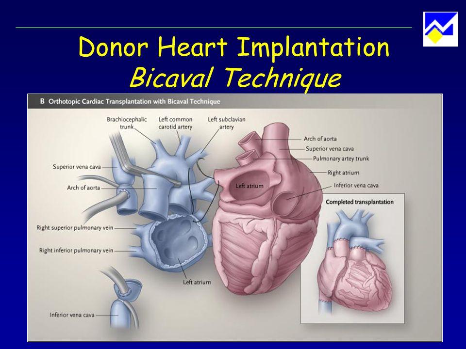 Donor Heart Implantation