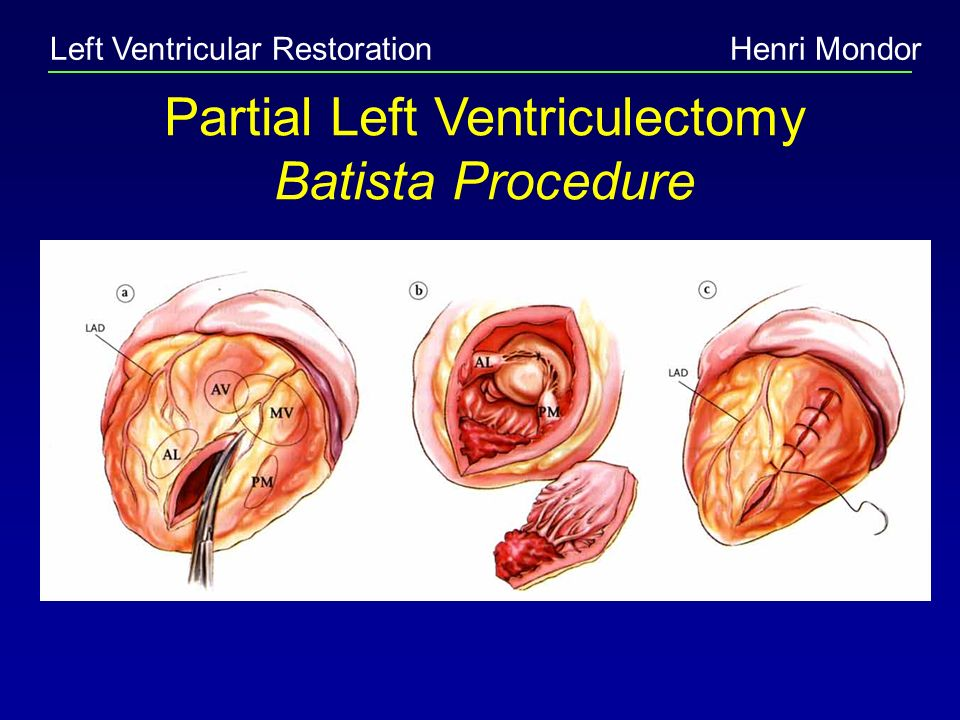 Partial Left Ventriculectomy