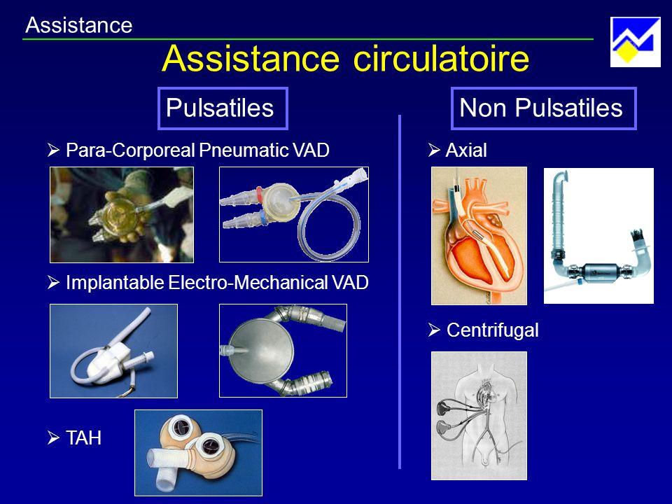Assistance circulatoire
