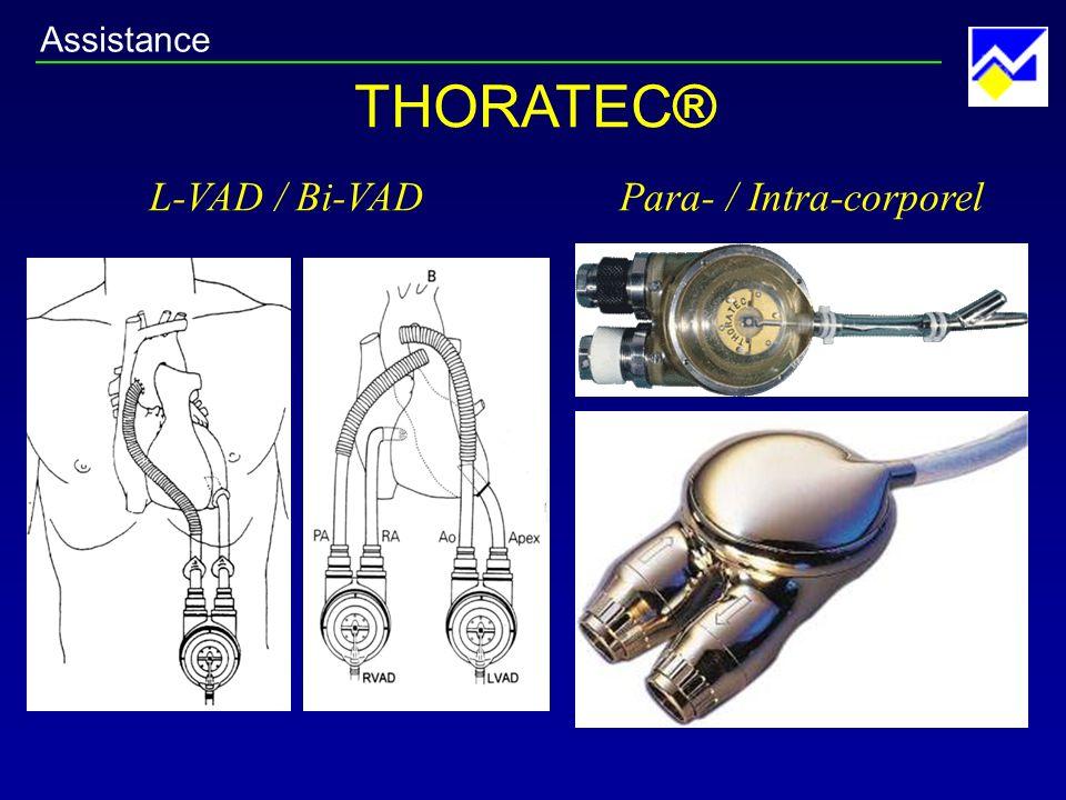 Assistance THORATEC® L-VAD / Bi-VAD Para- / Intra-corporel