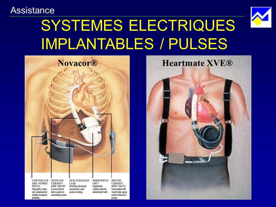 SYSTEMES ELECTRIQUES IMPLANTABLES / PULSES Assistance Novacor®