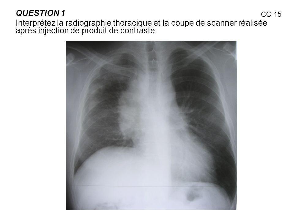 QUESTION 1Interprétez la radiographie thoracique et la coupe de scanner réalisée après injection de produit de contraste.