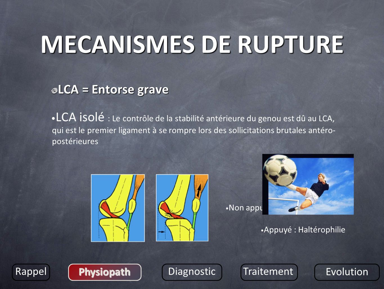 MECANISMES DE RUPTURE LCA = Entorse grave