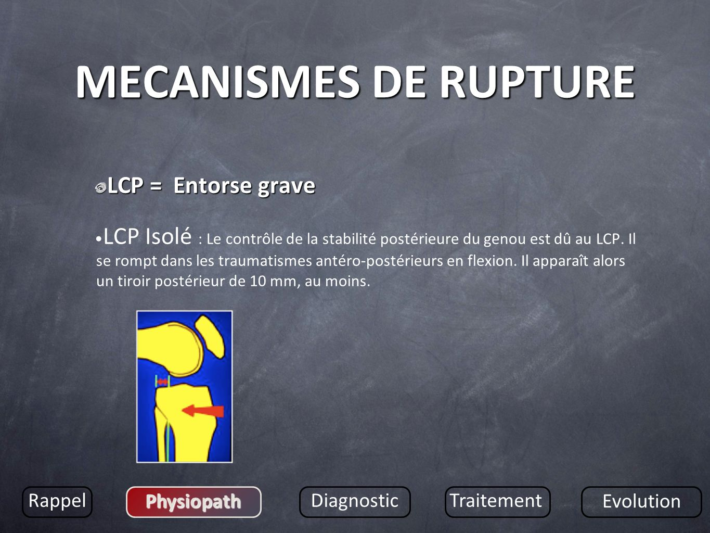 MECANISMES DE RUPTURE LCP = Entorse grave