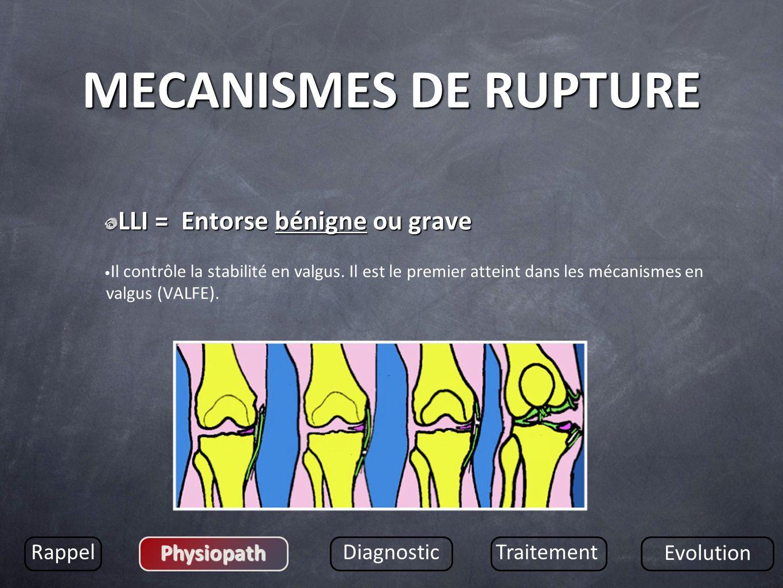 MECANISMES DE RUPTURE LLI = Entorse bénigne ou grave Rappel Physiopath
