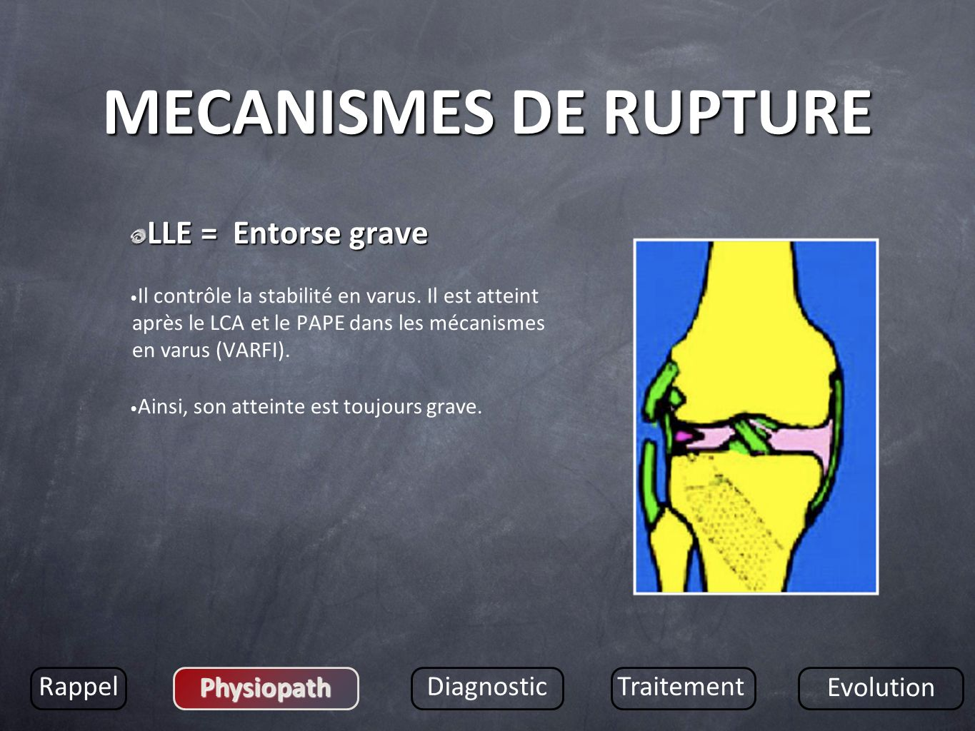 MECANISMES DE RUPTURE LLE = Entorse grave Rappel Physiopath Diagnostic