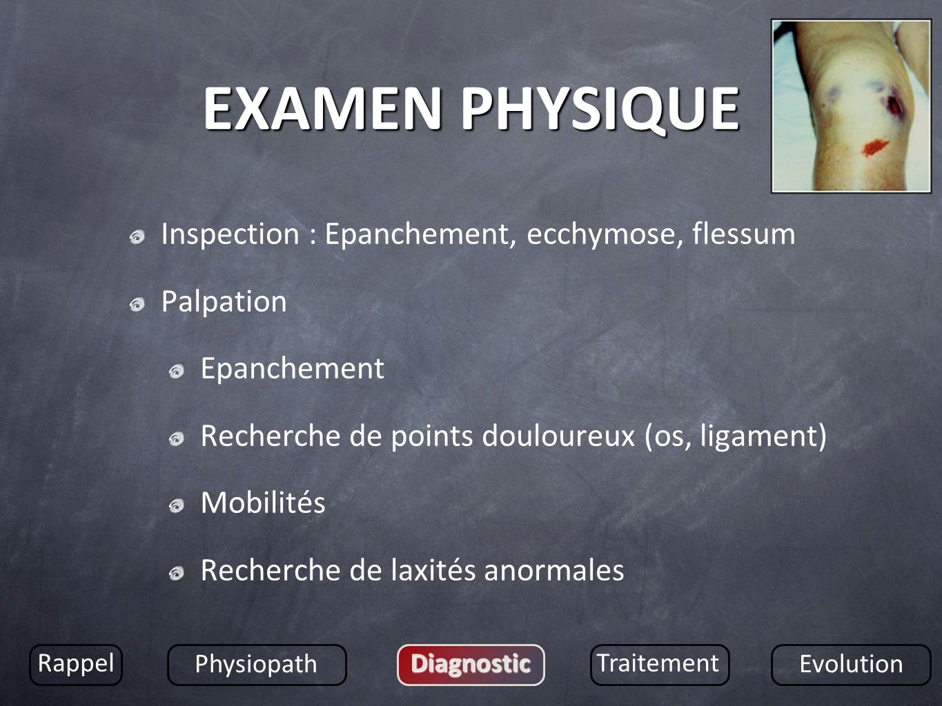 EXAMEN PHYSIQUE Inspection : Epanchement, ecchymose, flessum Palpation